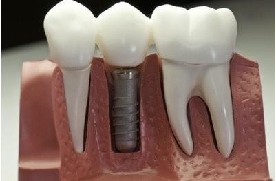 Имплантация зубов в Серпухове